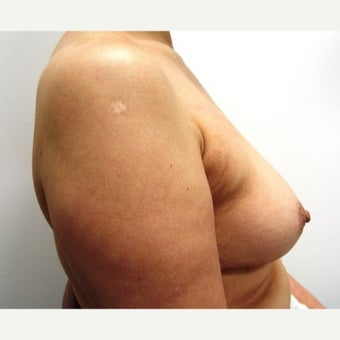 45-54 year old woman treated with Breast Implant Removal 1540288