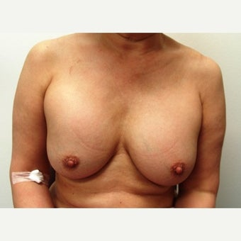 45-54 year old woman treated with Breast Implant Removal before 1540288