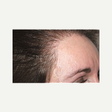 45-54 year old woman treated with Hair Transplant after 2438352