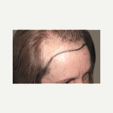 45-54 year old woman treated with Hair Transplant before 2438352
