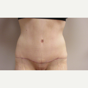 Tummy Tuck after weight loss after 3481445