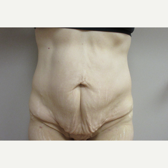 Tummy Tuck after weight loss before 3481445