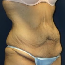 18-24 year old woman treated with Tummy Tuck before 1679391