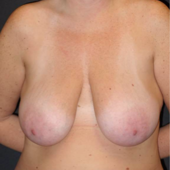 45-54 year old woman treated with Breast Lift with Implants before 3495800