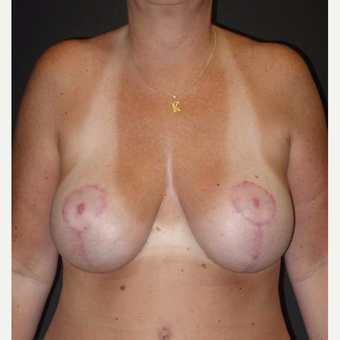 45-54 year old woman treated with Breast Lift with Implants after 3495800