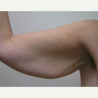 45-54 year old woman treated with Arm Lift before 3820313