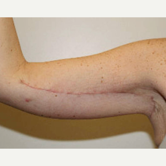 45-54 year old woman treated with Arm Lift after 3820313