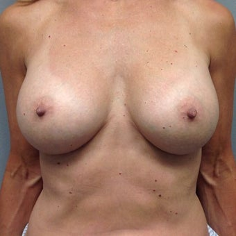 55-64 year old woman treated with Breast Augmentation after 2004554