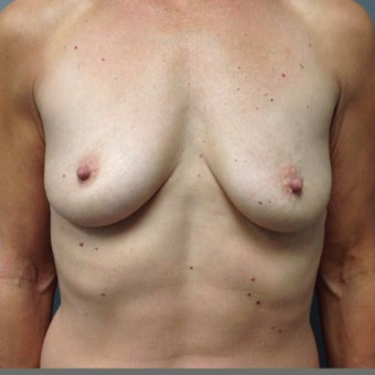 55-64 year old woman treated with Breast Augmentation before 2004554