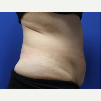 45-54 year old woman treated with SculpSure before 2421371