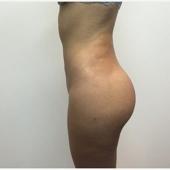 25-34 year old woman treated with Brazilian Butt Lift after 1965934