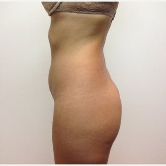 25-34 year old woman treated with Brazilian Butt Lift before 1965934