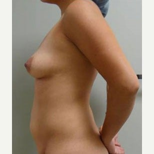 45-54 year old woman treated with Mommy Makeover 1791845