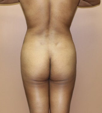 25-34 year old woman treated with Brazilian Butt Lift 3466317