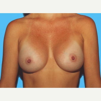 Breast Augmentation after 3732567