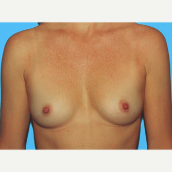 Breast Augmentation before 3732567