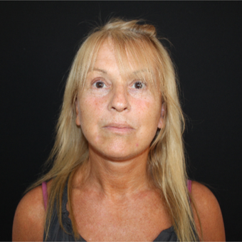 55-64 year old woman treated with Facelift after 3493238