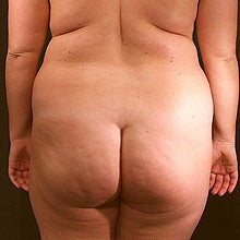 37 Year Old Female Treated with Liposuction to Back and Love Handles before 951225