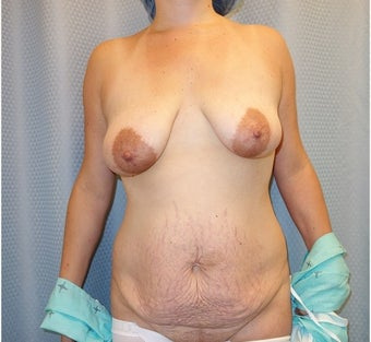 25-34 year old woman treated with Mommy Makeover before 3213179