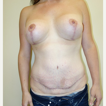 25-34 year old woman treated with Mommy Makeover after 3213179