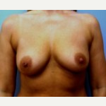 35-44 year old woman treated with Breast Implants before 3108111