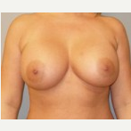 35-44 year old woman treated with Breast Implants after 3108111