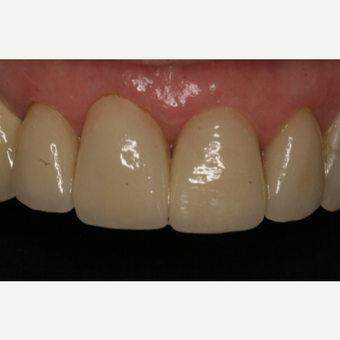 65-74 year old woman treated with Dental Crown after 2788850