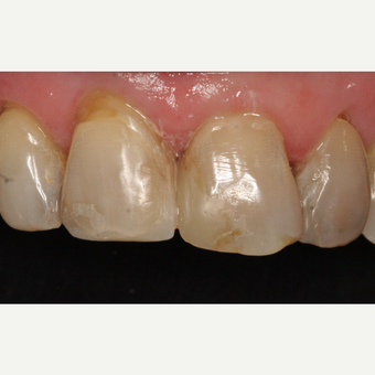 65-74 year old woman treated with Dental Crown before 2788850