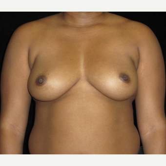 39 year old woman treated with Breast Augmentation before 3252465