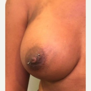 45-54 year old woman treated with Nipple Surgery after 2112934