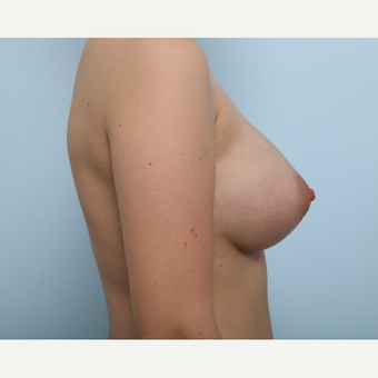 Breast Augmentation after 3425398