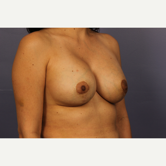 35-44 year old woman treated with Breast Lift with Implants after 3110578