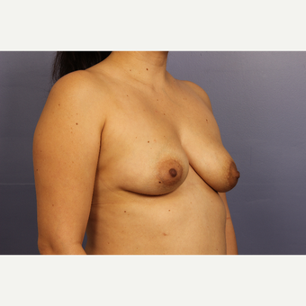 35-44 year old woman treated with Breast Lift with Implants before 3110578
