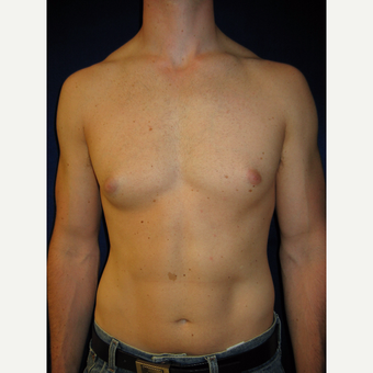 25-34 year old man treated with Male Breast Reduction before 3765946