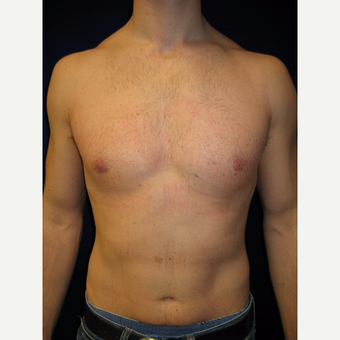 25-34 year old man treated with Male Breast Reduction after 3765946