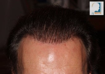 55-64 year old man treated with FUE Hair Transplant after 3120061