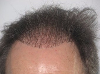 55-64 year old man treated with FUE Hair Transplant before 3120061