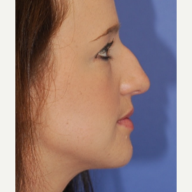 18-24 year old woman treated with Rhinoplasty before 3619247