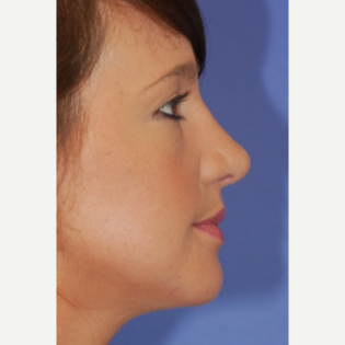18-24 year old woman treated with Rhinoplasty after 3619247
