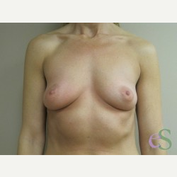 Breast Implants before 3373688