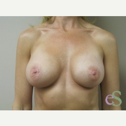 Breast Implants after 3373688