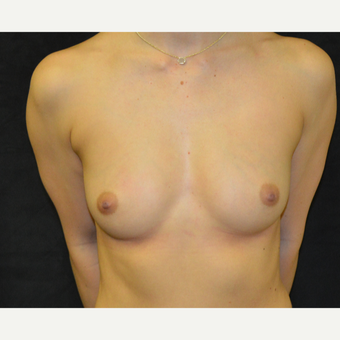 18-24 year old woman treated with Breast Augmentation before 3419241