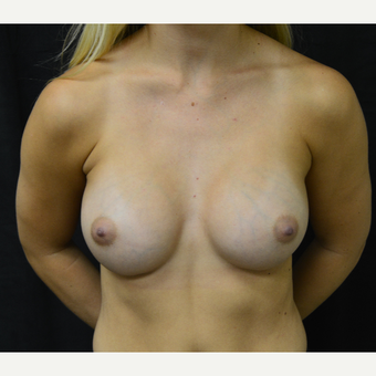 18-24 year old woman treated with Breast Augmentation after 3419241