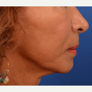 Neck Lift after 3220636