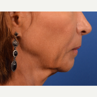 Neck Lift before 3220636