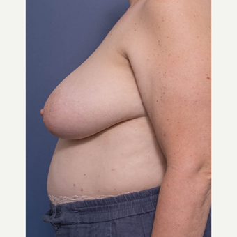 55-64 year old woman treated with Breast Reduction before 3766908