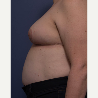 55-64 year old woman treated with Breast Reduction after 3766908