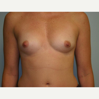 Breast Augmentation before 3560732