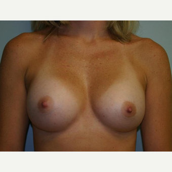 Breast Augmentation after 3560732