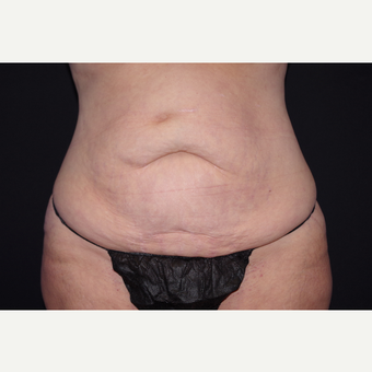 35-44 year old woman treated with Tummy Tuck before 3123640